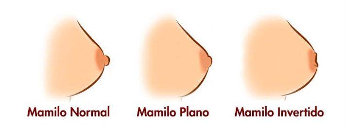 Tipos de Mamilo