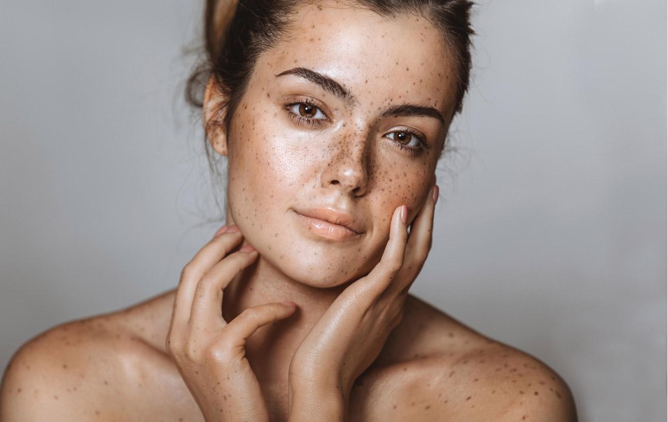 como melhorar o aspecto do melasma na pele