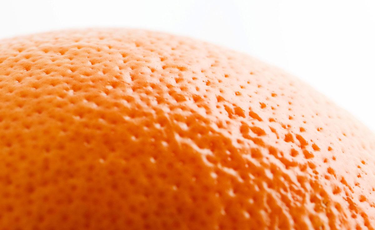 causas dos poros dilatados