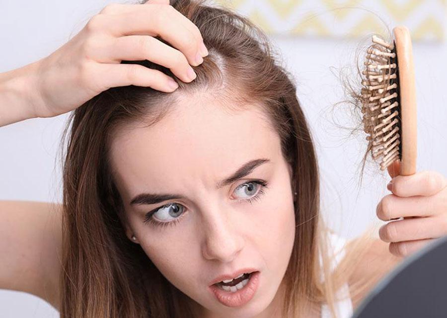 O que é Alopecia