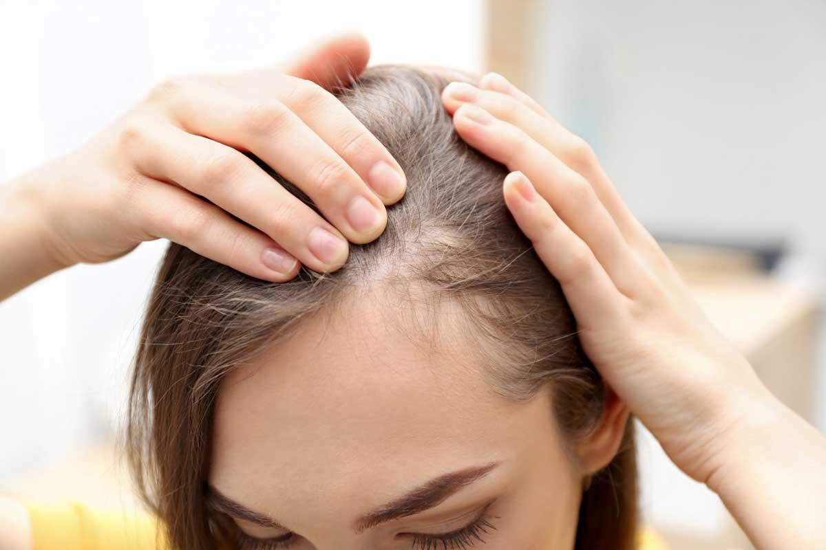 qual a diferença entre alopecia e calvície