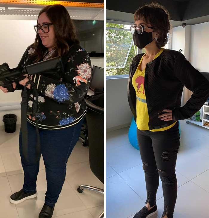 antes e depois da redução de estômago