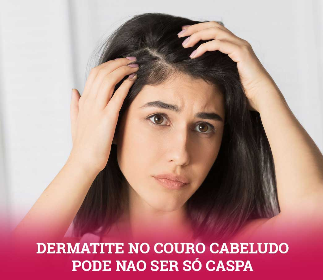 dermatite no couro cabeludo pode não ser caspa